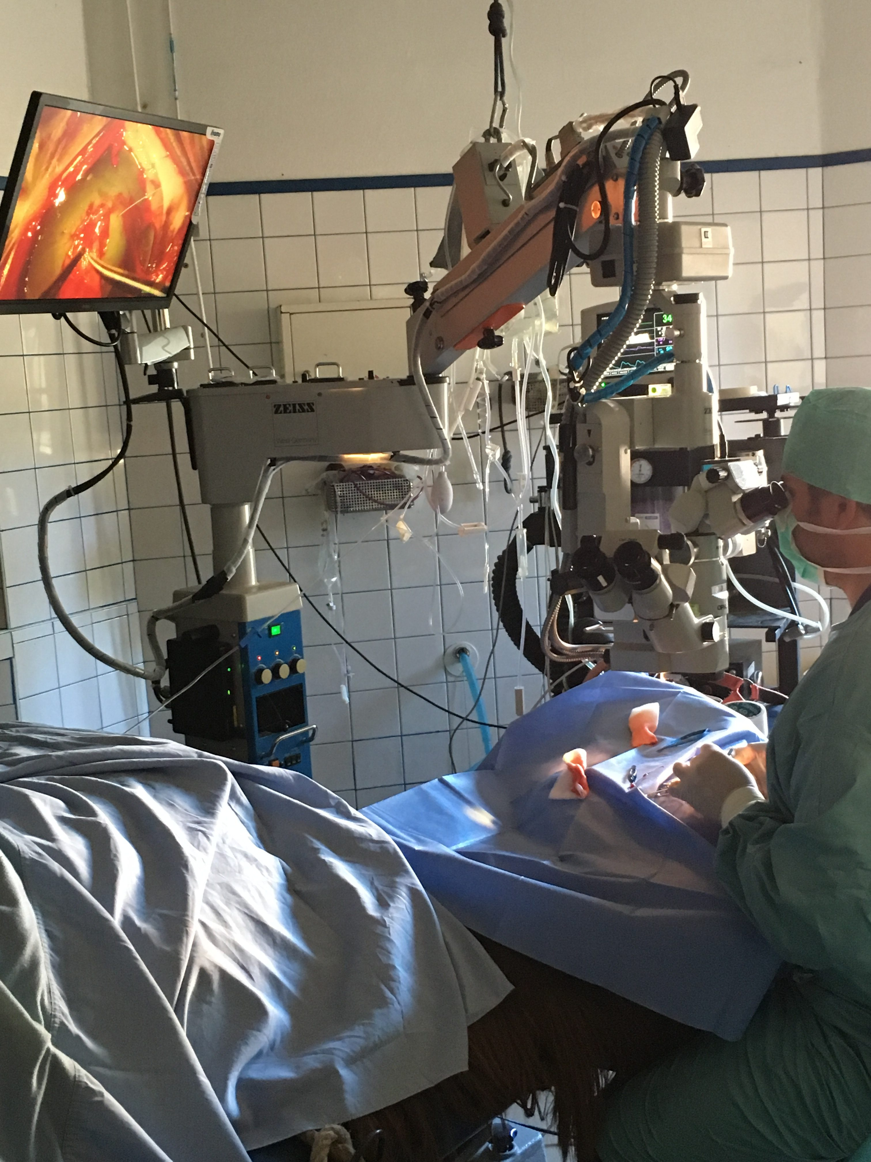 Chirurgie ophtalmologique sous microscope opératoire