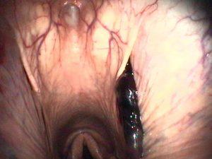 Endoscopie des voies respiratoires supérieures au repos