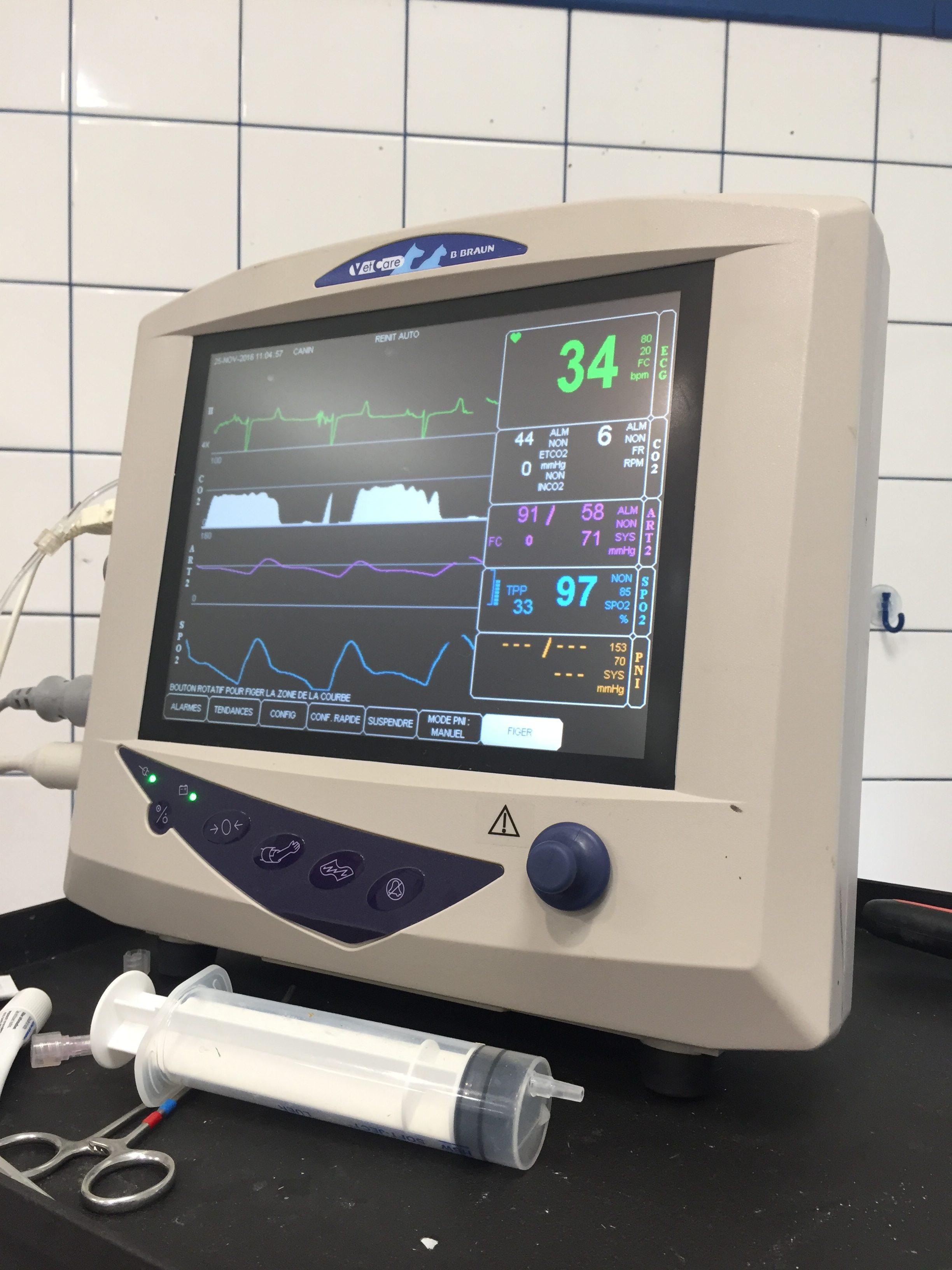Appareil de monitoring d'anesthésie