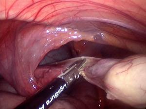 Système chirurgical de thermofusion tissulaire (Ligasure), cordon testiculaire