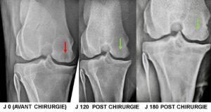 Kyste osseux sous chondral du GRASSET (fémur) mise en place d'un implant biodégradable