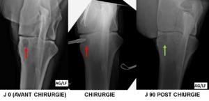 Kyste osseux sous chondral du COUDE (radius) mise en place d'un implant biodégradable